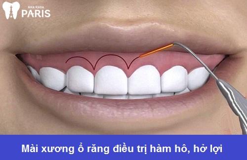 Phẫu thuật mài xương hàm