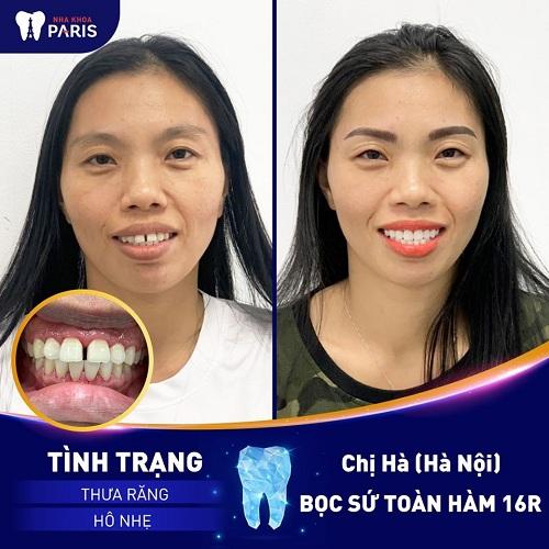 răng hô có nên làm răng sứ