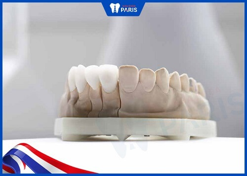 răng sứ nacera giá bao nhiêu