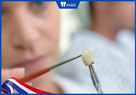 ưu điểm của răng sứ nacera