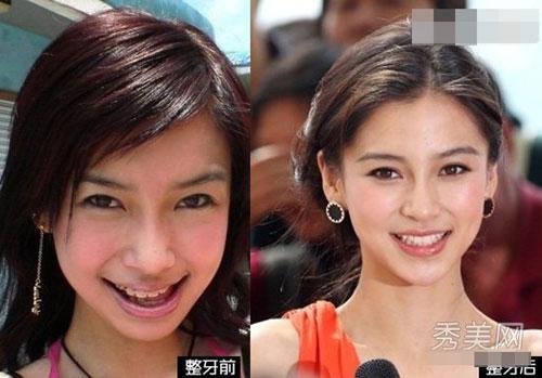 AngelaBaby thay đổi hàm răng xấu không dám cười