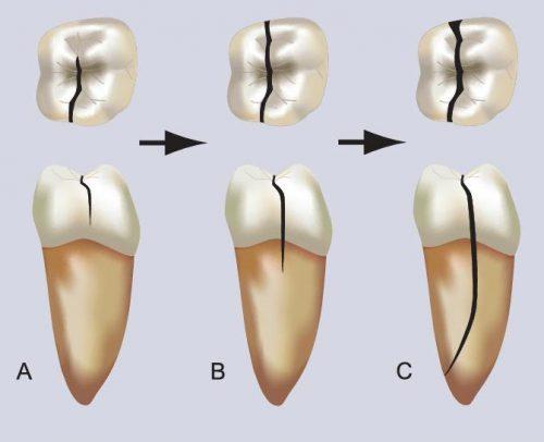 răng lấy tủy bị vỡ