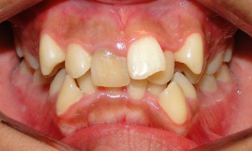 hình ảnh răng mọc lẫy ở trẻ