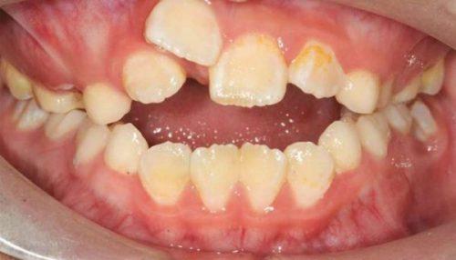 răng bé mọc lẫy