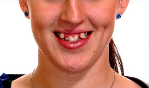 răng trẻ bị mọc lẫy