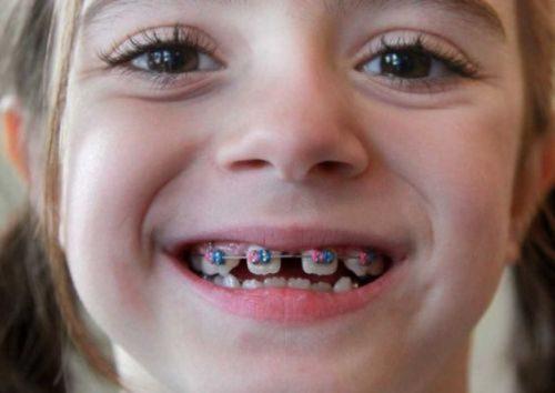 răng mọc lẫy ở trẻ