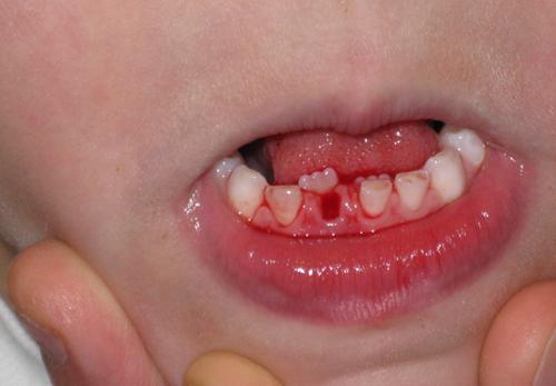 răng bị mọc lẫy