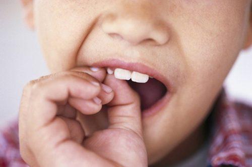 răng sữa mới lung lay có nên nhổ không