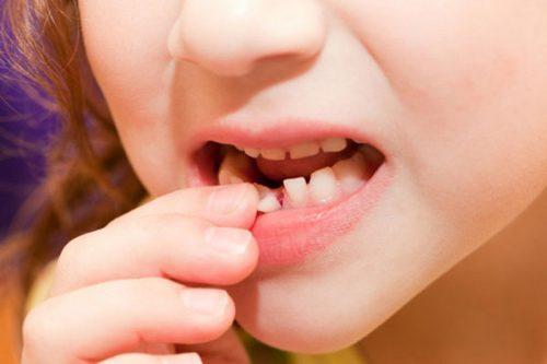 răng sữa lung lay bao lâu thì rụng