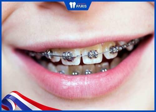 rớt mắc cài do răng mất bám dính