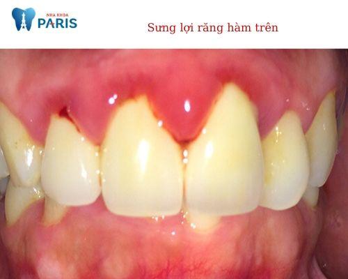 sưng nướu răng hàm trên