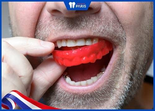máng chống nghiến răng khi ngủ