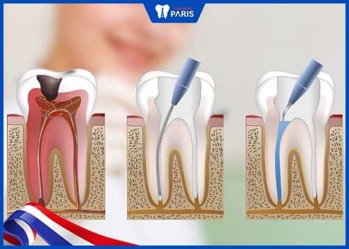 tại sao phải lấy tủy răng nhiều lần