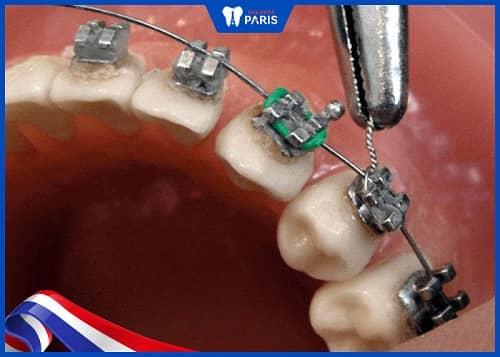 niềng răng tháo ra có lắp lại được không