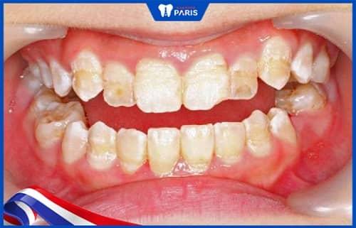 thiểu sản men răng là gì