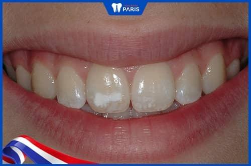 nguyên nhân thiểu sản men răng