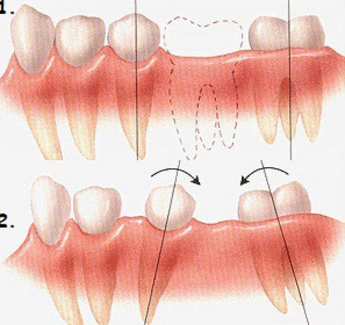 nhổ răng không trồng lại có sao không