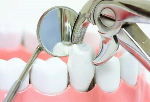 Nhổ răng bao lâu thì có thể trồng răng?