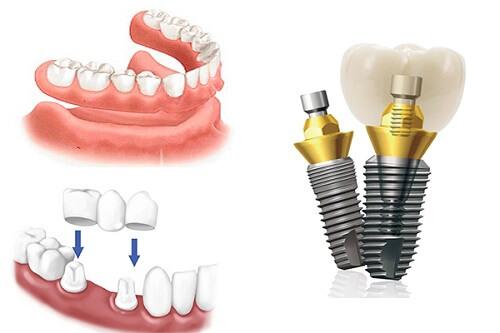 trồng răng không có chân răng