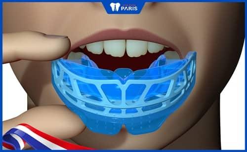 cách sử dụng bộ niềng răng tại nhà 3 giai đoạn