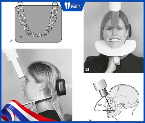 chụp x quang răng Occlusal