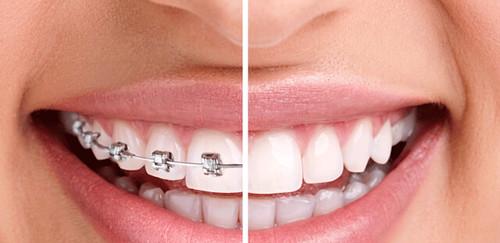 Điều chỉnh răng để chữa khỏi tình trạng loạn khớp thái dương hàm