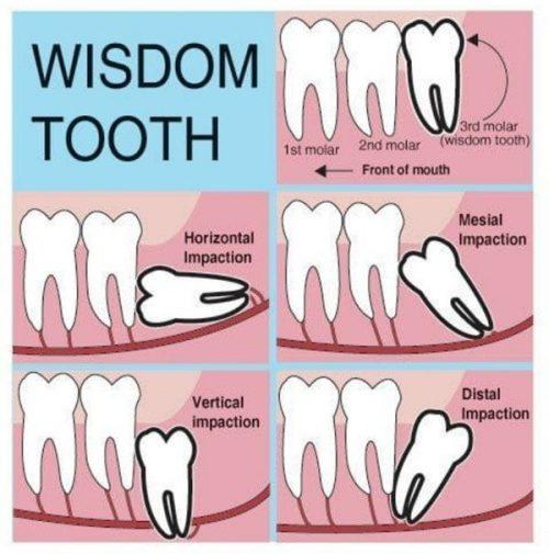 điềm báo khi mọc răng khôn