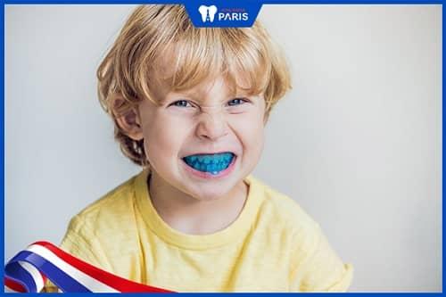 bộ dụng cụ niềng răng tại nhà 3 giai đoạn