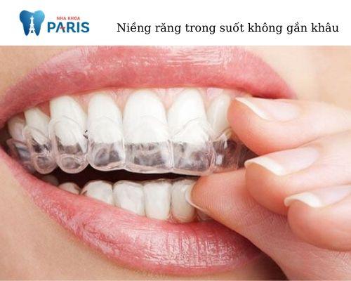 niềng răng không gắn khâu