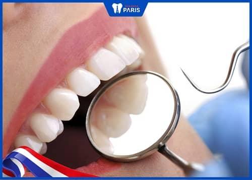 hàm răng chuẩn cần có hình thể đẹp