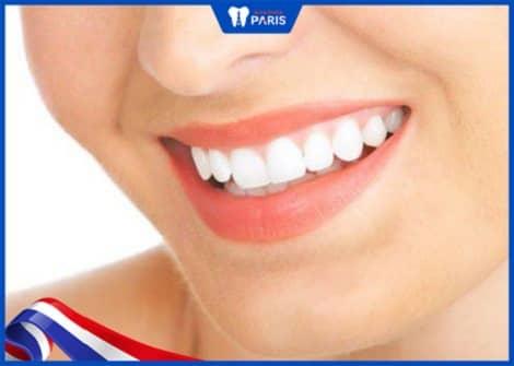 hàm răng đẹp cần có màu trắng tự nhiên