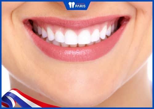 hàm răng đẹp cần có kích thước hài hòa