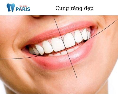 hàm răng đẹp chuẩn