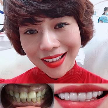 răng ngắn phải làm sao