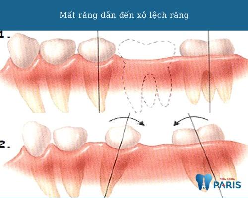 nhổ răng không trồng lại khiến răng xô lệch