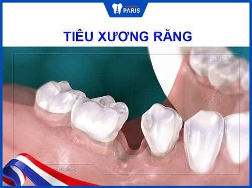 nhổ răng không trồng lại gây tiêu xương