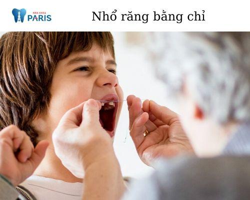 cách nhổ răng tại nhà cho trẻ bằng chỉ