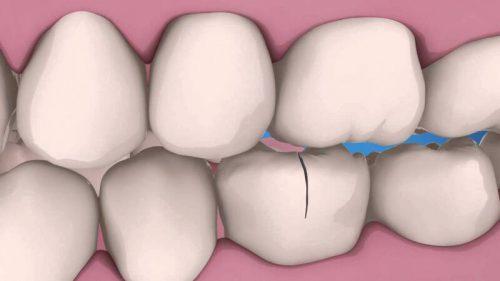 răng bị nứt có tự lành