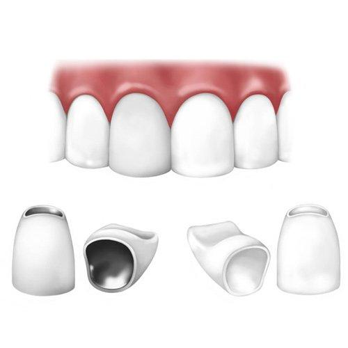 Bọc răng sứ với răng sứ kim loại và toàn sứ