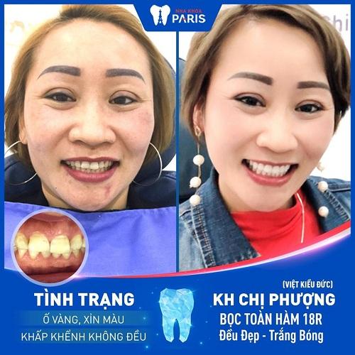 cách chữa răng ố vàng