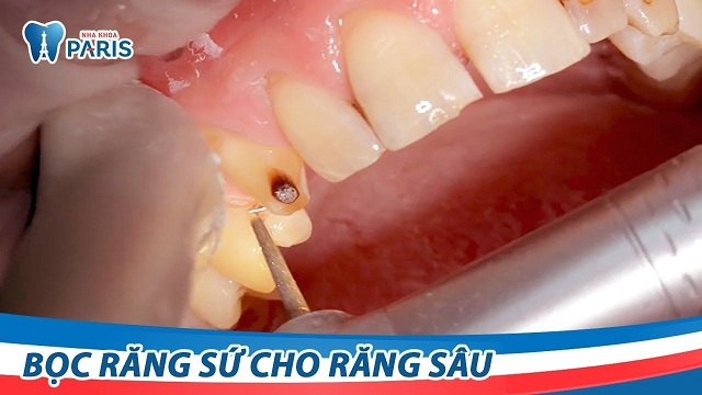 Cách hết đau răng