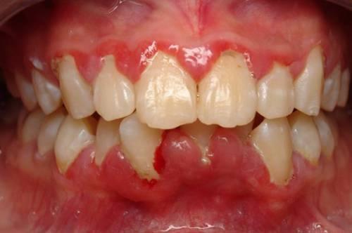 sưng mộng răng là gì