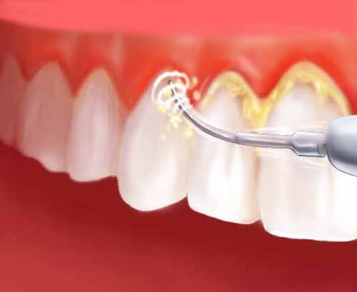 cách chữa sưng mộng răng