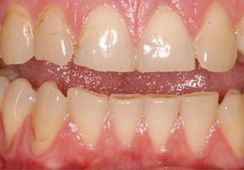cách phục hồi răng bị mẻ tại nhà