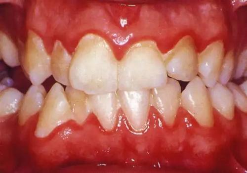 xử lý răng mẻ
