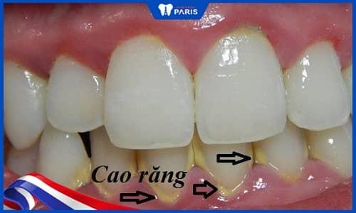Nguyên nhân gây viêm nướu răng là cao răng