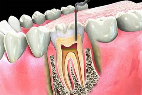 có nên diệt tủy răng không