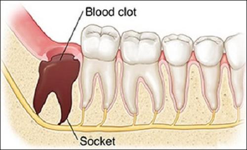 Máu đông sau khi nhổ răng