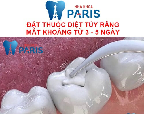 diệt tủy răng có ảnh hưởng gì không