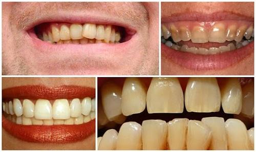 Hình ảnh răng ố vàng